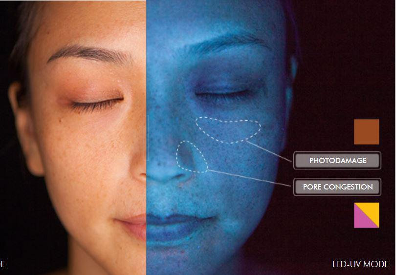 Skin Consultation SkinScope Analysis