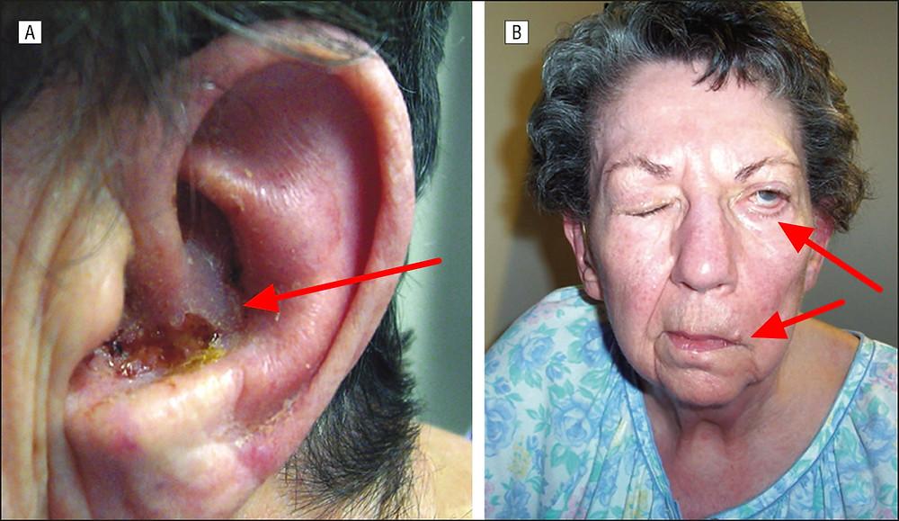 parálisis facial, otalgia y afectación del VIII par craneal (vértigo e hipoacusia)