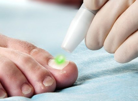 Fungal Nail - How we can help!