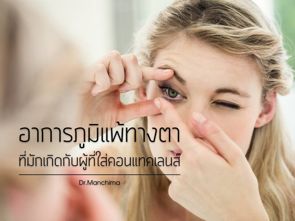 contact lens allergy