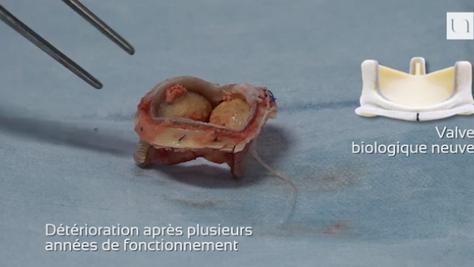 Vidéo d'une chirurgie cardiaque pour remplacement valvulaire aortique conséquent à une détériora