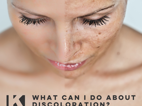 WHAT CAN I DO ABOUT DISCOLORATION?