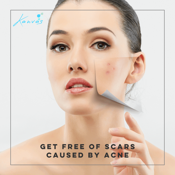 GET FREE OF SCARS CAUSED BY ACNE
