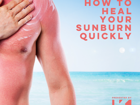 HOW TO HEAL YOUR SUNBURN QUICKLY