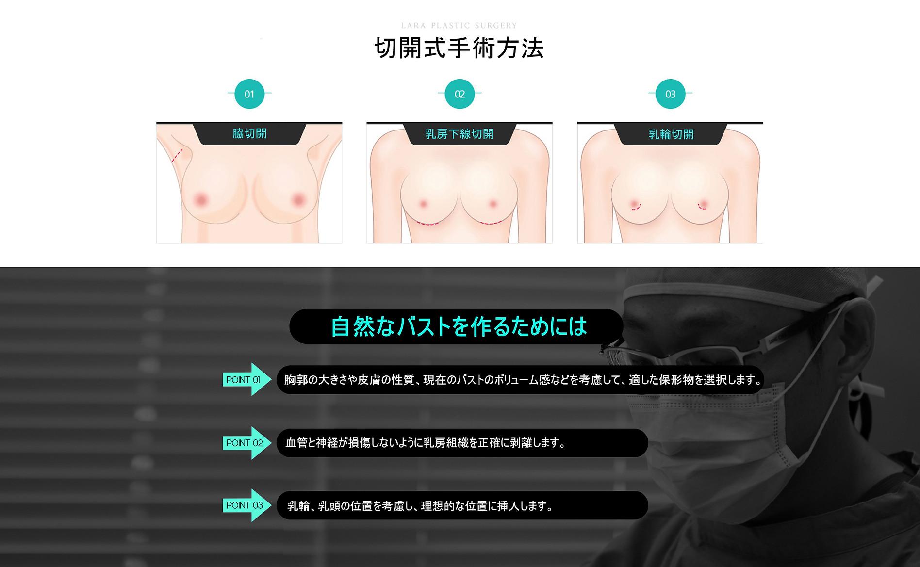 절개에-따르-수술방법.jpg