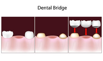 tooth bridges Carrollton TX