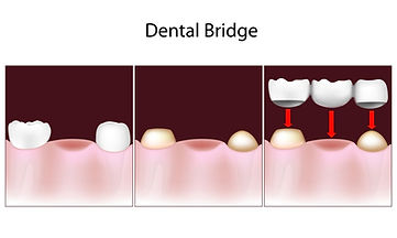 Dental bridge Carrollton dental