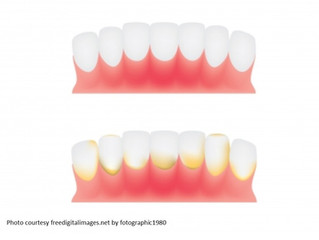 Bleeding Gums Can Lead To Tooth Loss