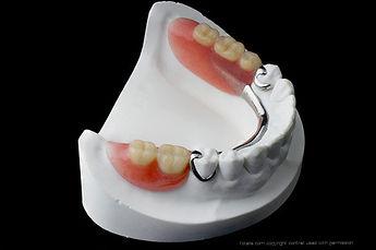 Carrollronpartial denture