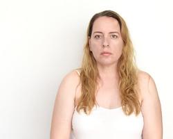 Operación estética 1 (Lipoma)