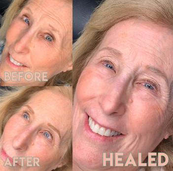 Healed-brow-tattoo.jpg