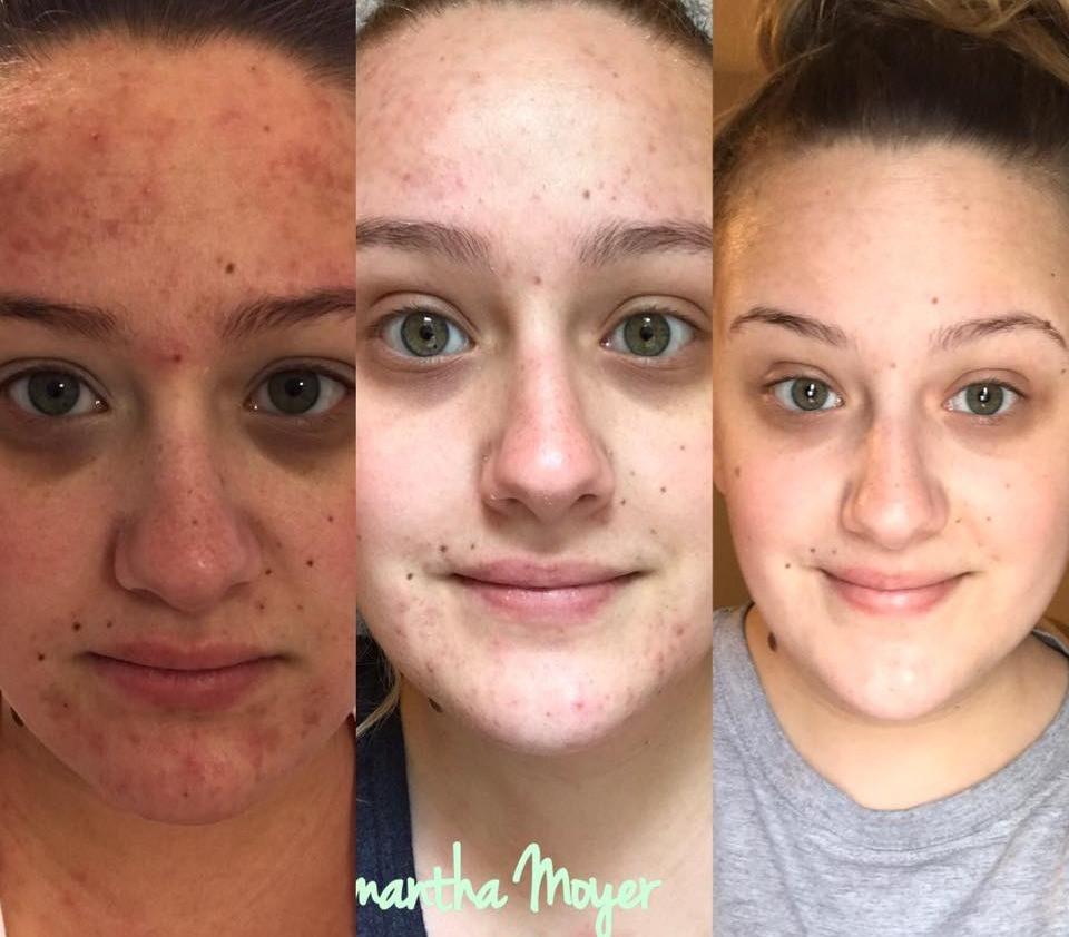 Maskcara Milk Moisturizer Results