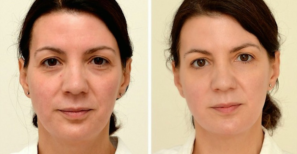 This Woman Drank 3 Liters Of Water A Day. Her Final Results Shocked Everyone!