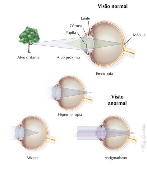 Visão Normal e Anormal