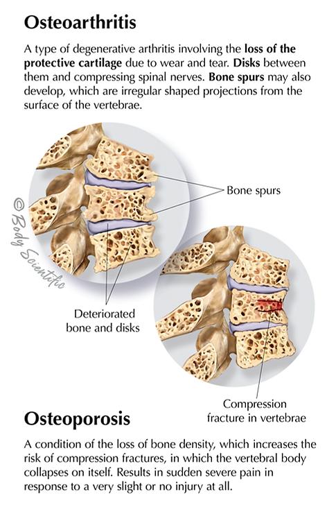 Osteoarthritis and Osteoporosis