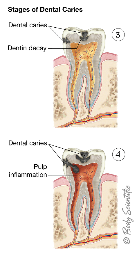 Stages of Dental Caries (Late Stages)