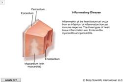 Inflammatory Disease
