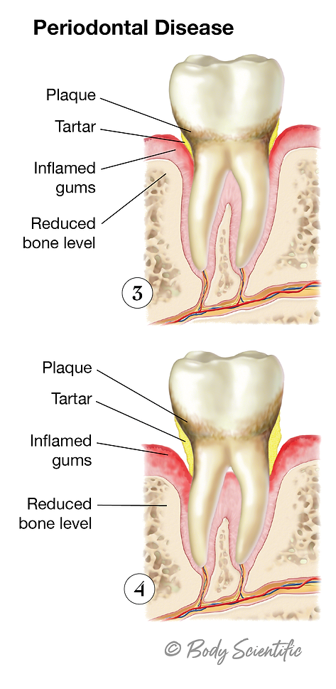 Gingivitis (Late Stages)