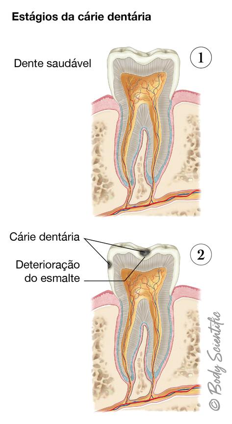 Estágios da Cárie Dentária (Estágios Iniciais)