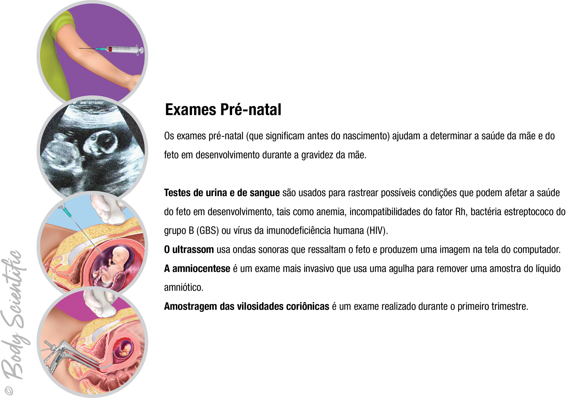 Exames Pré-natal