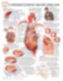 BS113_Understanding Heart Disease.jpg
