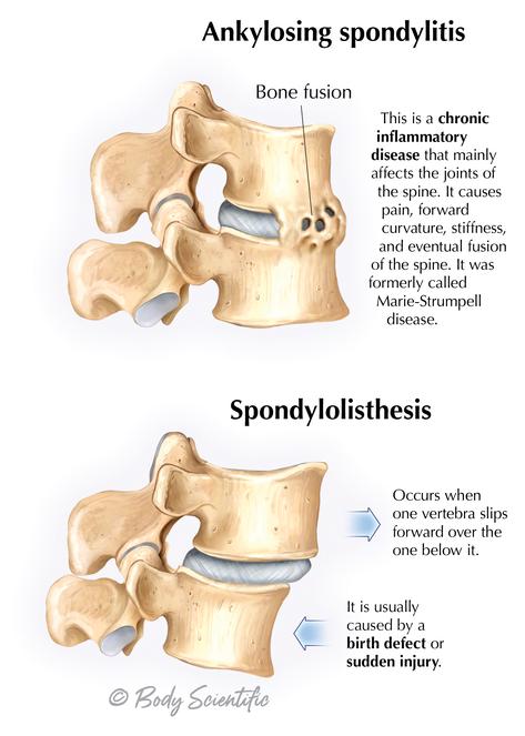 Ankylosing spondylitis and Spondylolisthesis