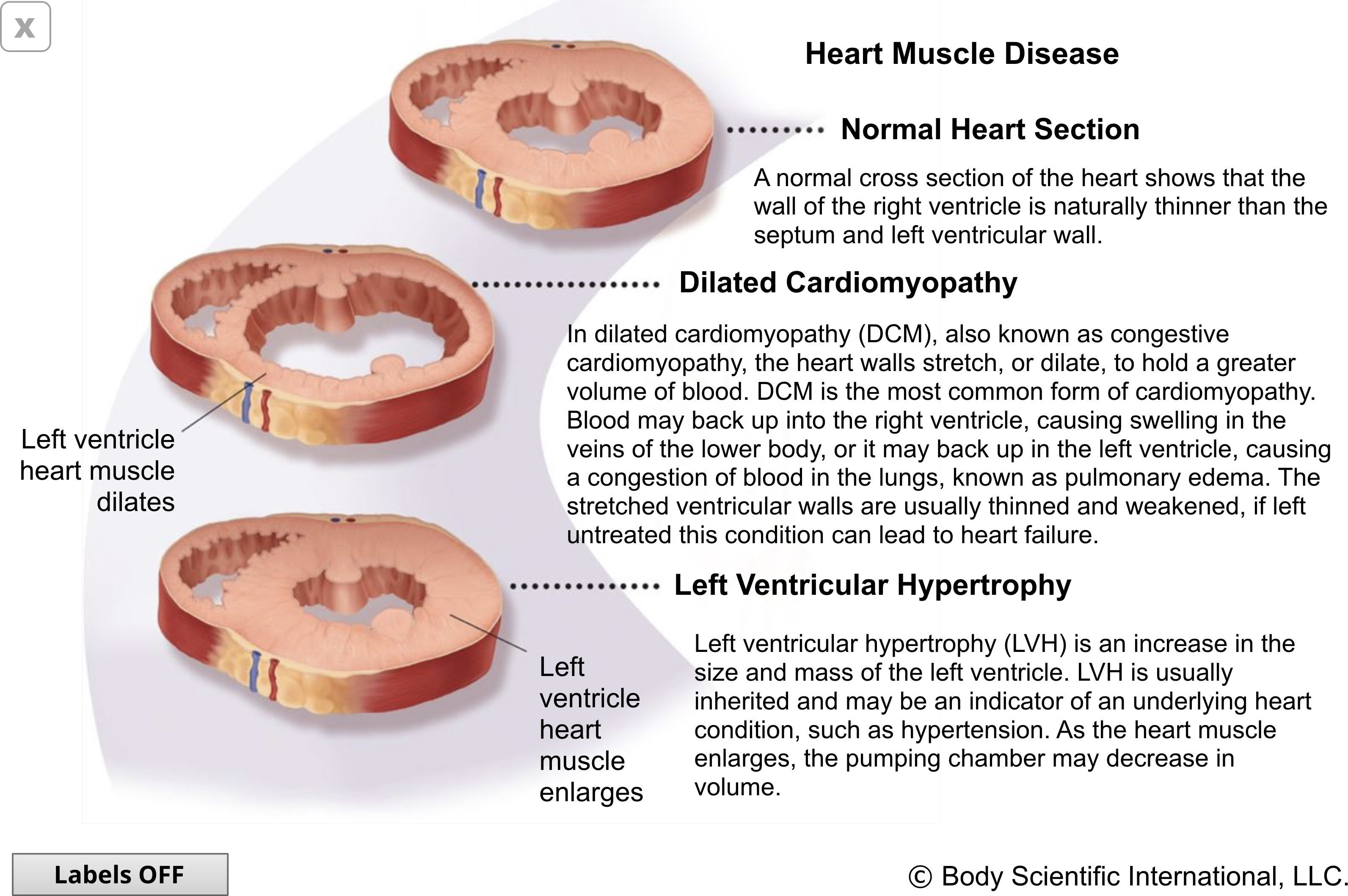 Heart Muscle Disease