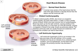 Heart Muscle Disease