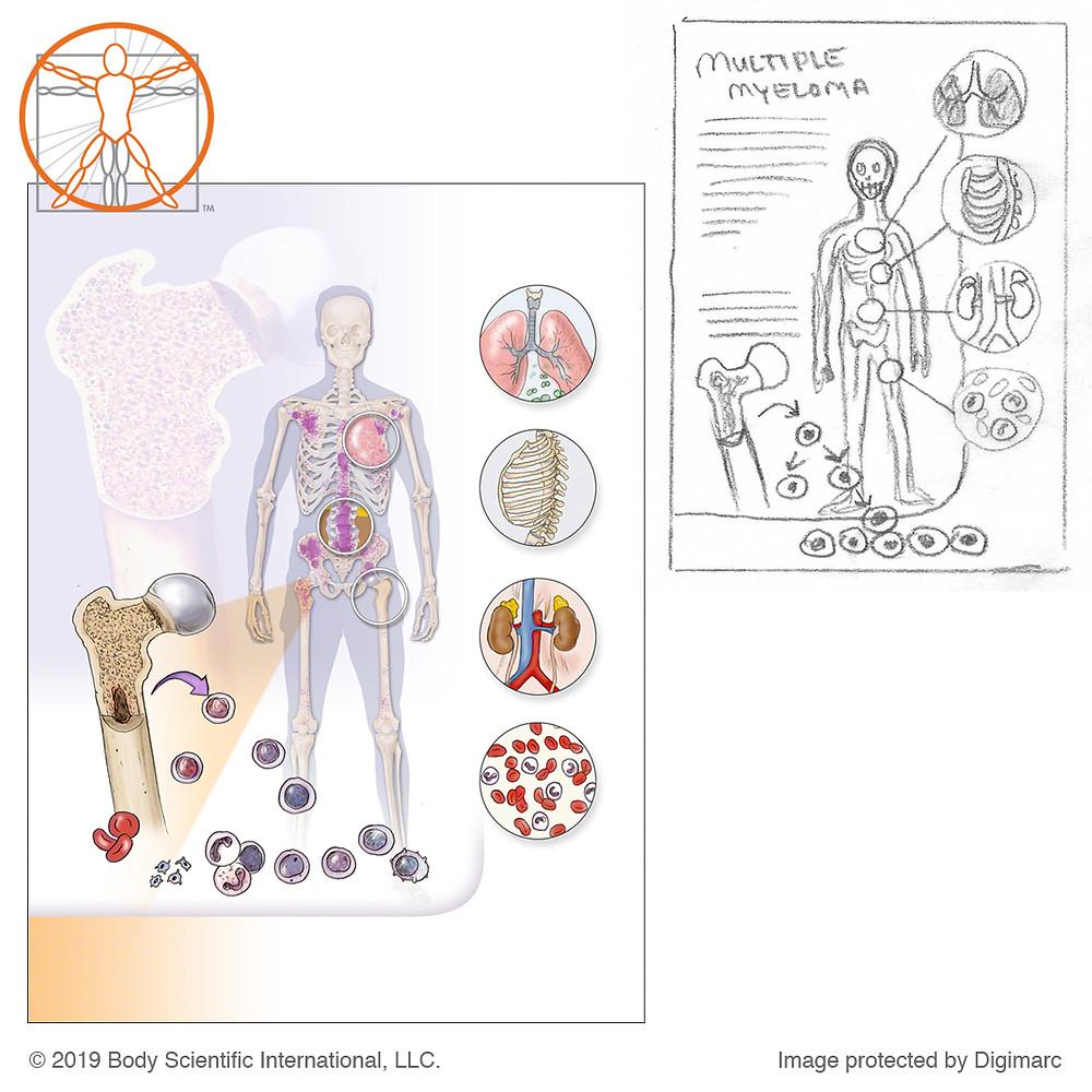 Multiple myeloma chart mockup by Carolina Hrejsa