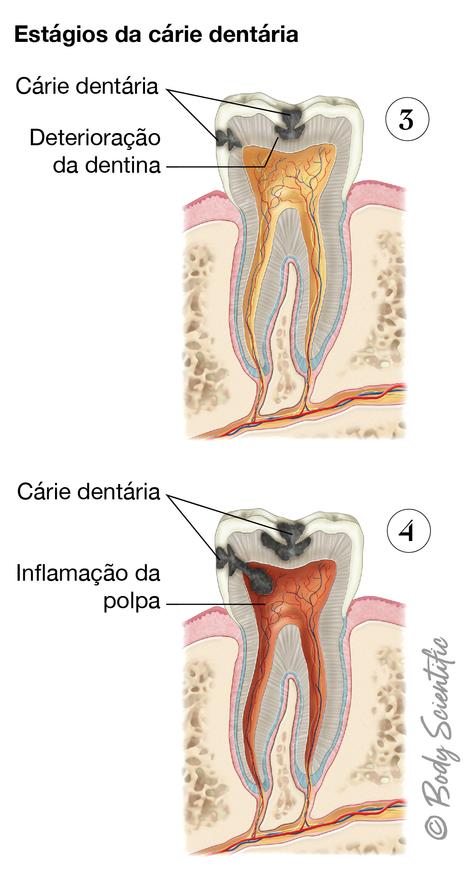 Estágios da Cárie Dentária (Estágios Tardios)