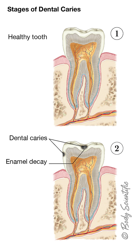 Stages of Dental Caries (Early Stages)