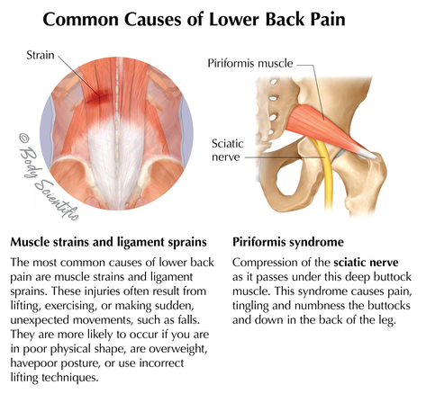 Common Causes of Low Back Pain
