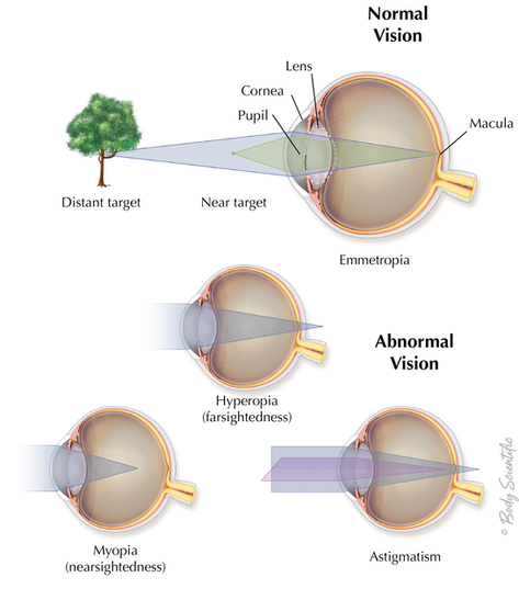 Vision Normal and Abnormal