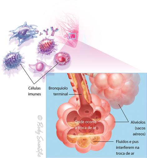 Resposta Imunológica