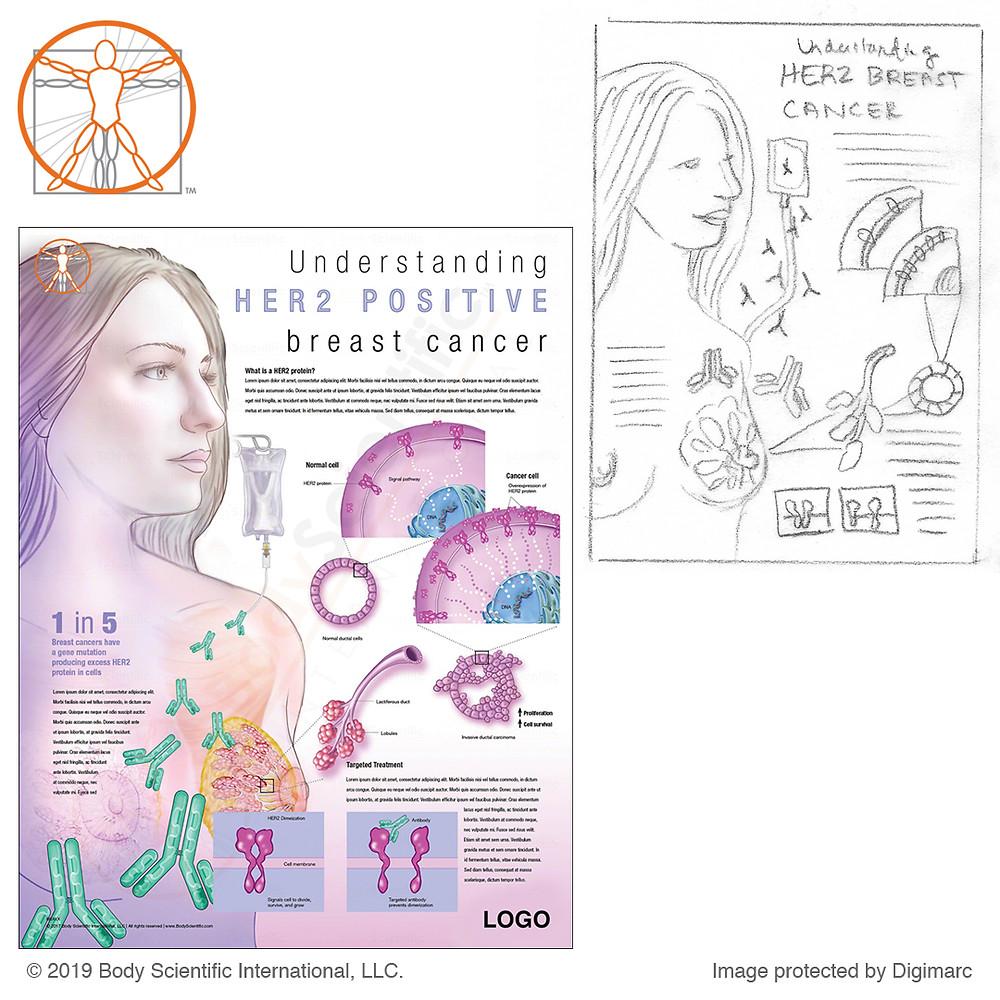 HER2 breast cancer chart mockup by Carolina Hrejsa