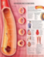 10-BS165_Atherosclerosis.jpg