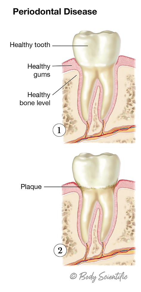 Gingivitis (Early Stages)