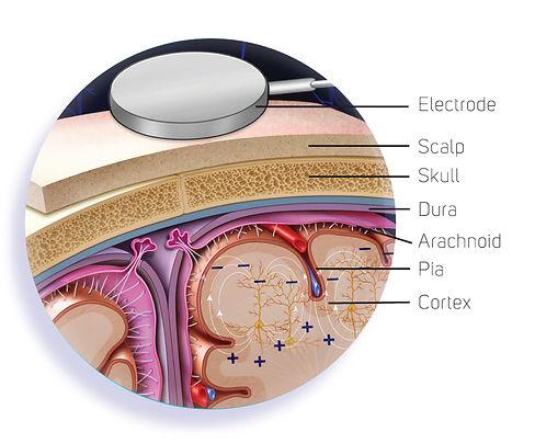 BS017-01_Brainwaves_electrode.jpg