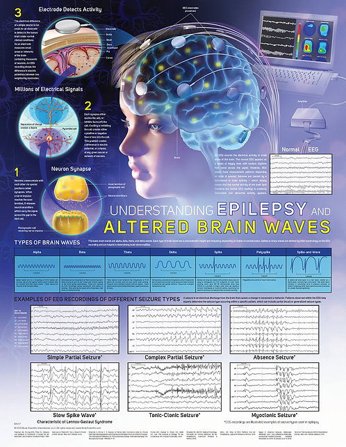 Epilepsy & Brainwaves - Anatomical Wall Chart