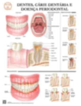 Dentes, Cárie Dentária e Doença Periodontal