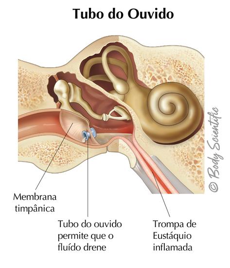 Tubo do Ouvido