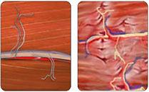 Überdehnter Muskel bei Hexenschuss