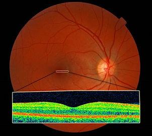 Retinal Imaging Saskatoon