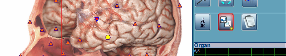 Bicom Body-Check, Scan des Kopfes