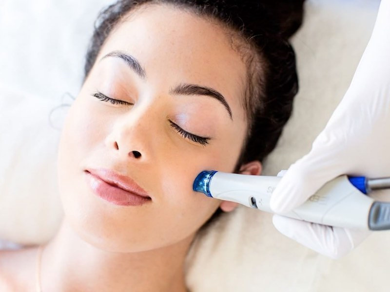 Ultraluxe Hydradermabrasion