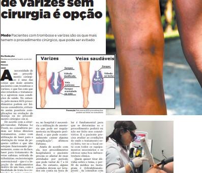 Tratamento de varizes sem internação é opção para quem quer evitar cirurgias