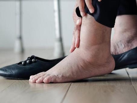 Varizes nos pés requer atenção especial e tratamento com especialista
