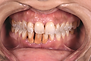 Teeth with calculus - litho.png
