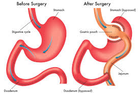 Gastric Bypass.png