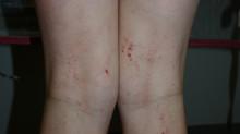 13 Tips for Managing Atopic Dermatitis